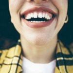 Gigi-Senyum